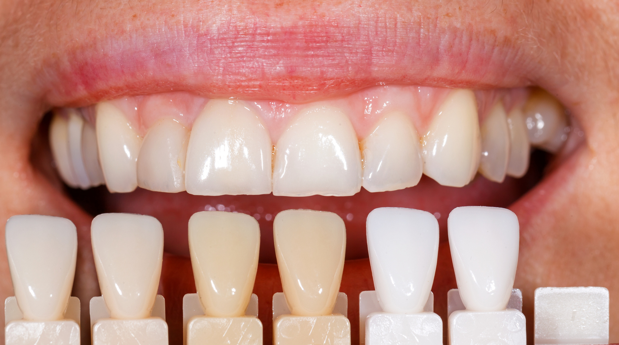 Are Veneers Worth It? An Honest Guide for Dental Veneers