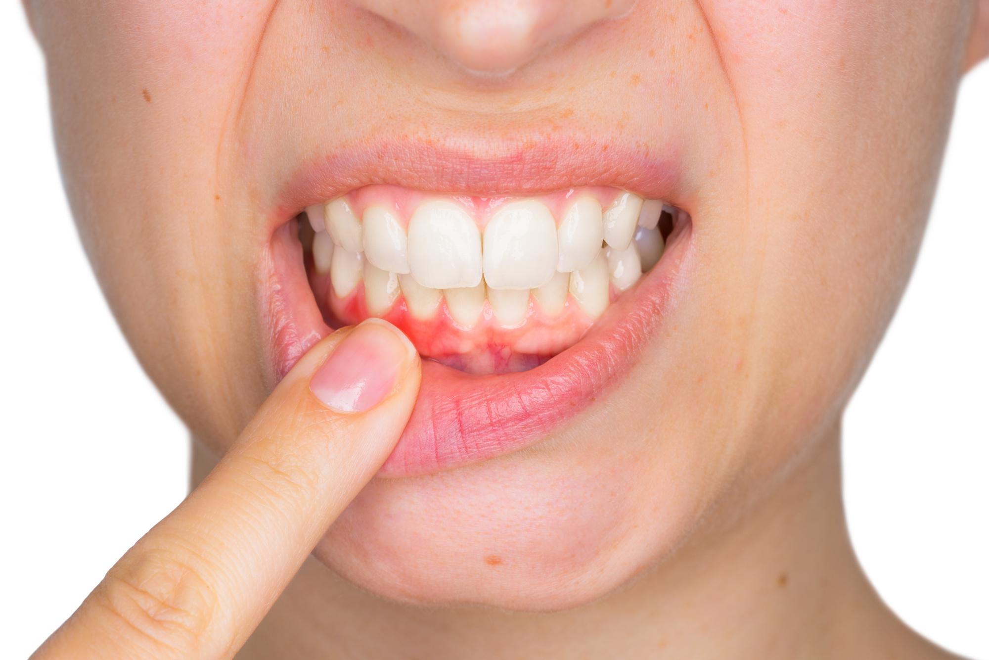 how to reverse gingivitis