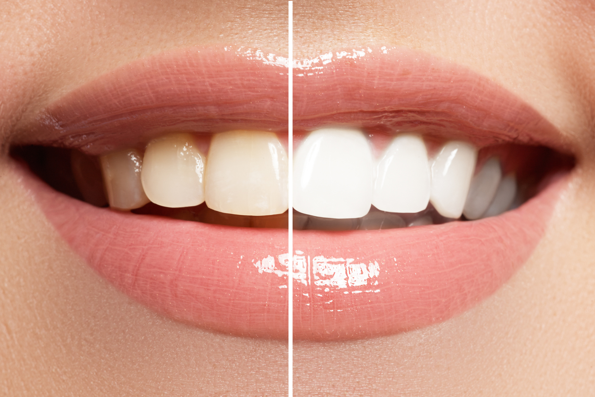 Chattanooga whitening treatment